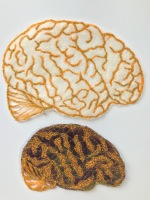 Healthy brain v sick brain © Ayu Baker