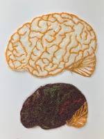 Healthy bran v sick brain © Ayu Baker
